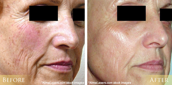 Ipl Photofacial Before And After Pictures Morehead City New Bern Nc