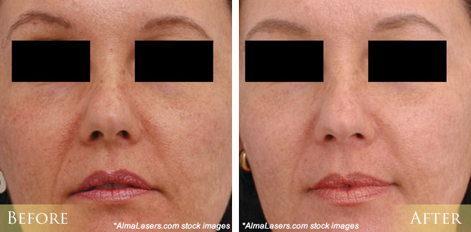 IPL Photofacial Before and After Pictures Morehead City, New Bern, NC