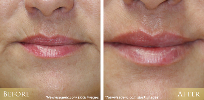 Lip Injections Morehead City, NC | New Bern Lip Injections