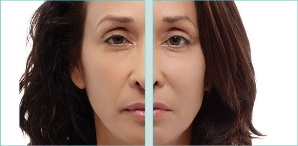 Radiesse Before & After