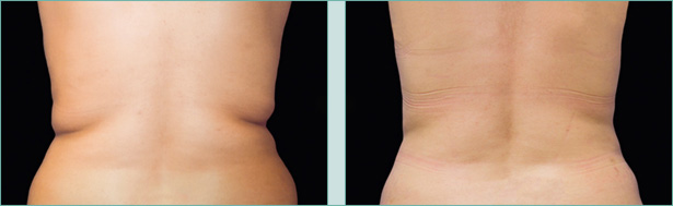 CoolSculpting Before & After