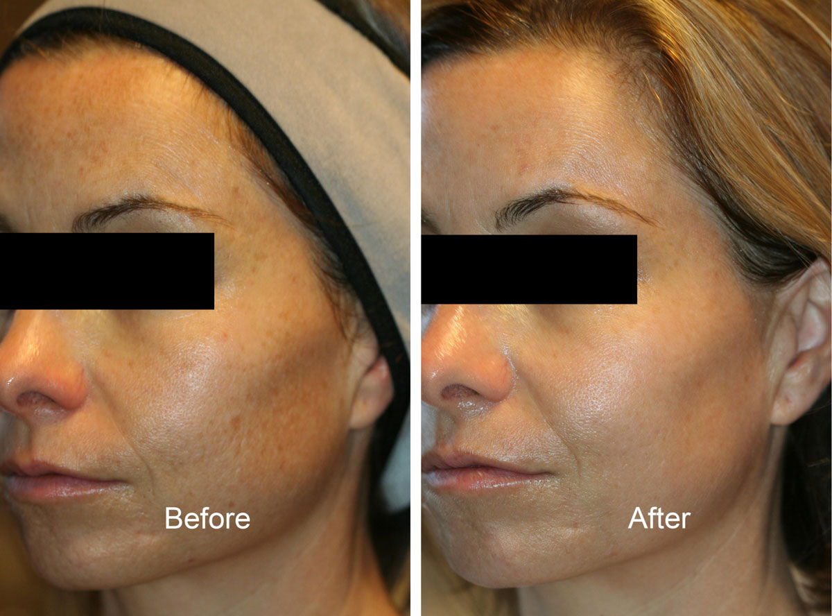 Venus Laser Before & After