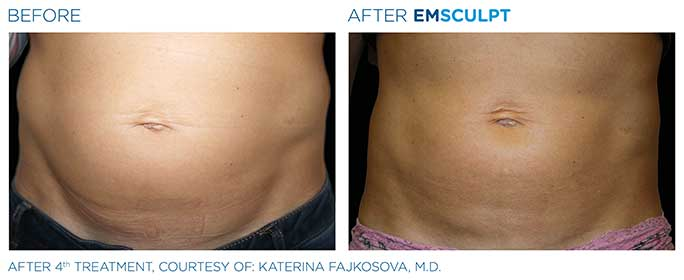 Emsculpt Before & After