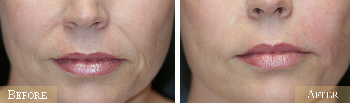 Juvederm Before & After