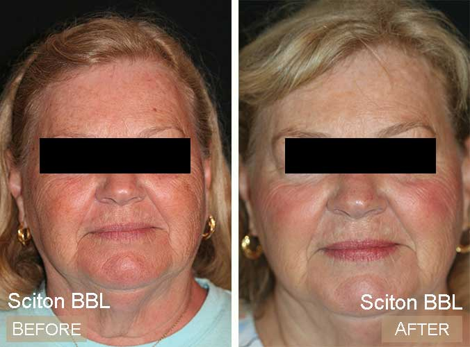 BBL Before & After