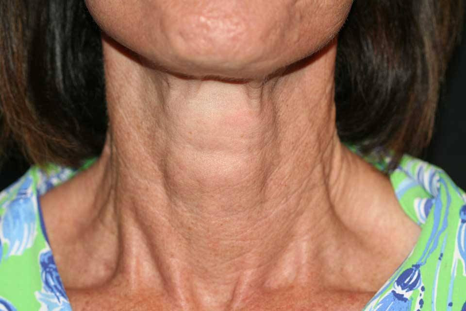 After SkinTyte and Profractional XC