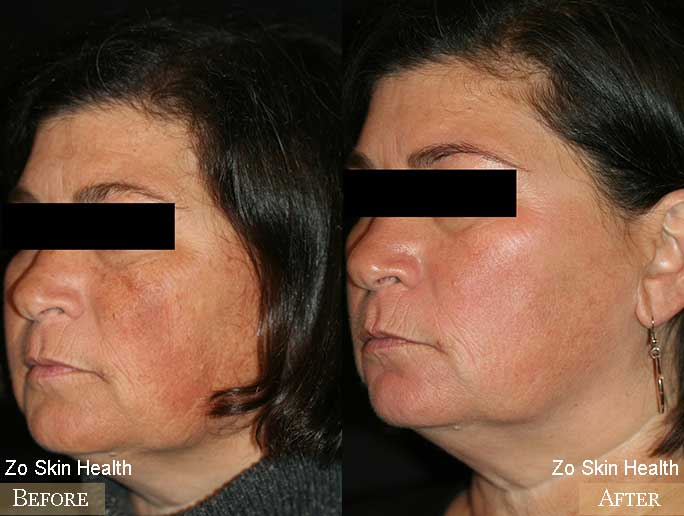 Zo Skin Health Before & After